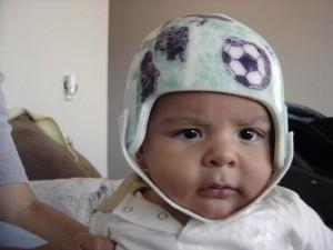 Emilio Fernández comenzó a utilizar el casco hace mes y medio. Este tratamiento permite que el cráneo crezca normalmente. Boris Fernández para LN